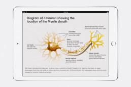 Metachromatic Leukodystrophy (MLD) Neuron and location of Myelin Sheath